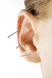 Ohrakupunktur mit Akupunkturnadeln